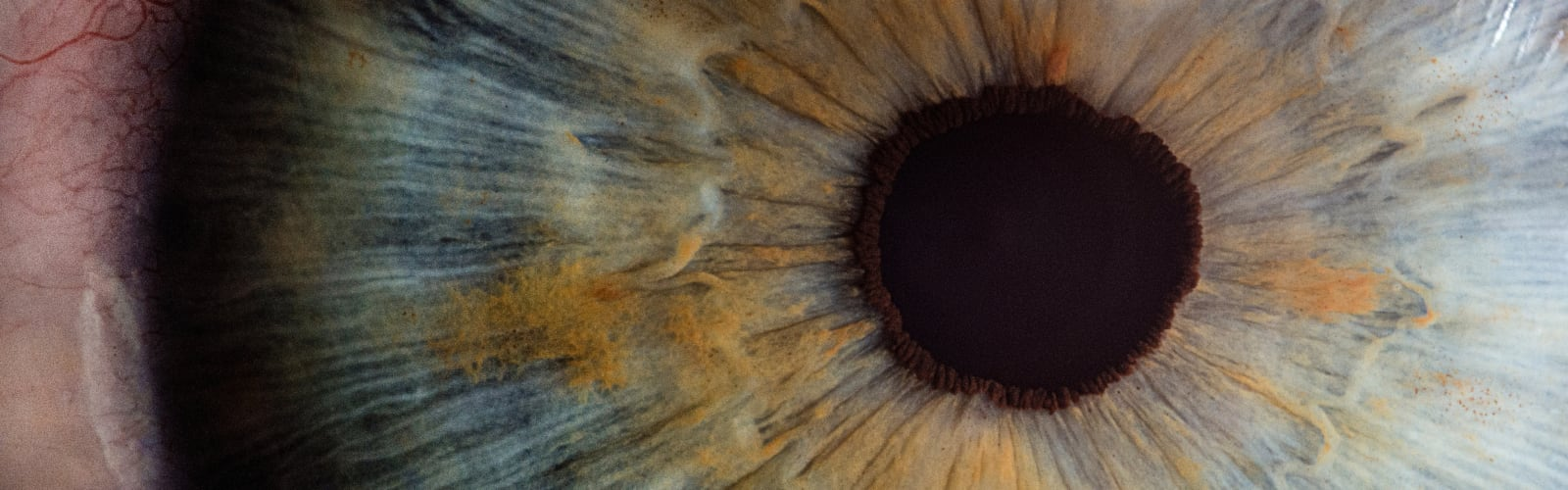 Retinal eye diseases